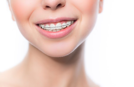 Wearing your retainer - does it really matter?