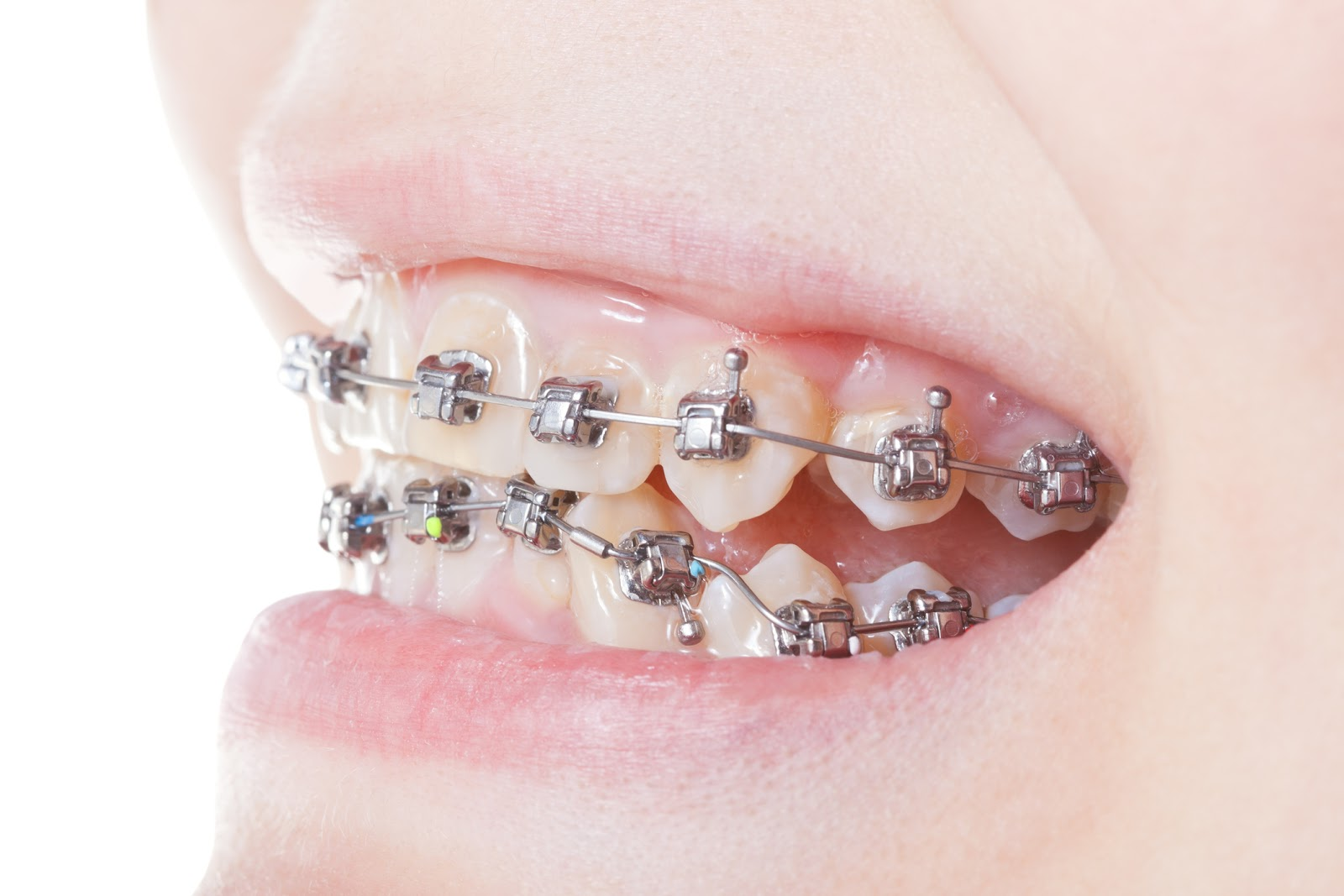 This is the image for the news article titled The Dangers of DIY Braces